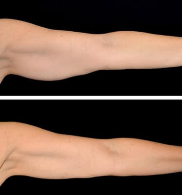 One treatment of CoolSculpting for the arms