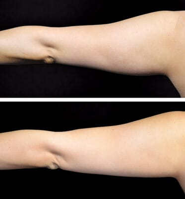 One CoolSculpting treatment for the arms