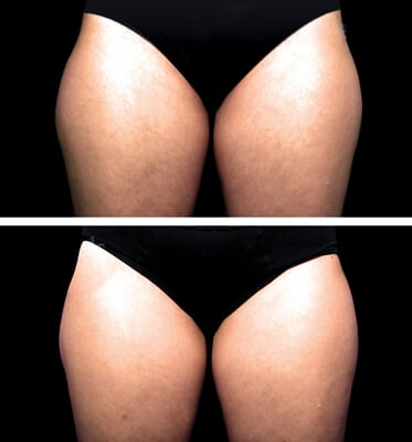One treatment of CoolSculpting for outer thighs
