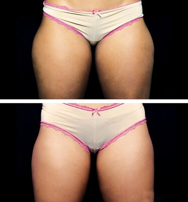 Two treatments of CoolSculpting for outer thighs