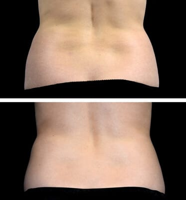 One treatment of CoolSculpting for the love handles