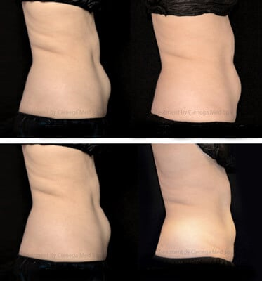 After two treatments of Coolsculpting for lower abdomen