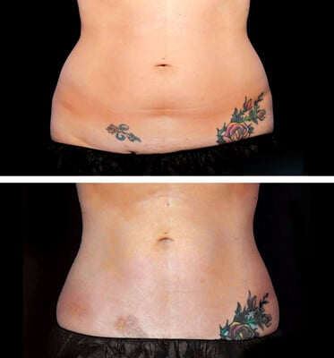 After two treatments of CoolSculpting for the abdomen and love handles