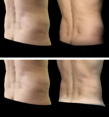 After two treatments CoolSculpting for the love handles