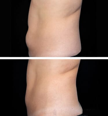 One treatment CoolSculpting for lower abdomen