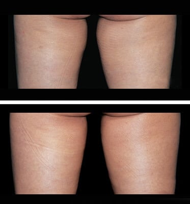 One treatment of CoolSculpting for inner thighs