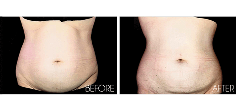 Amazing Transformations from Cienega Med Spa