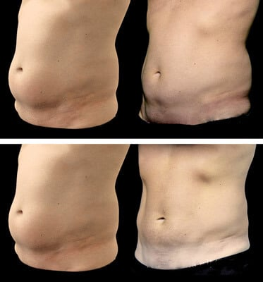 After two treatments of Coolsculpting for abdomen areas and love handles