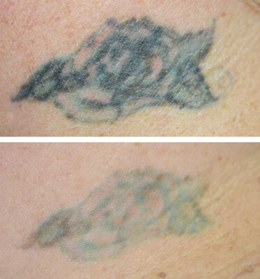 2 Treatments of Tattoo Removal
